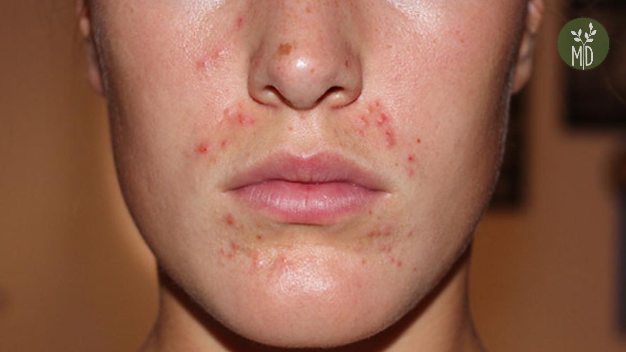 vörös viszkető foltok az orr közelében vetom pikkelysömör kezelése