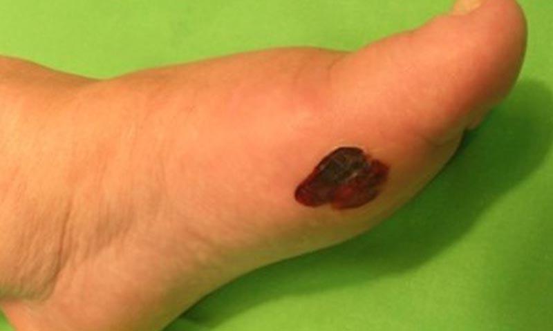 egy cukorbetegnek piros foltok vannak a lábán