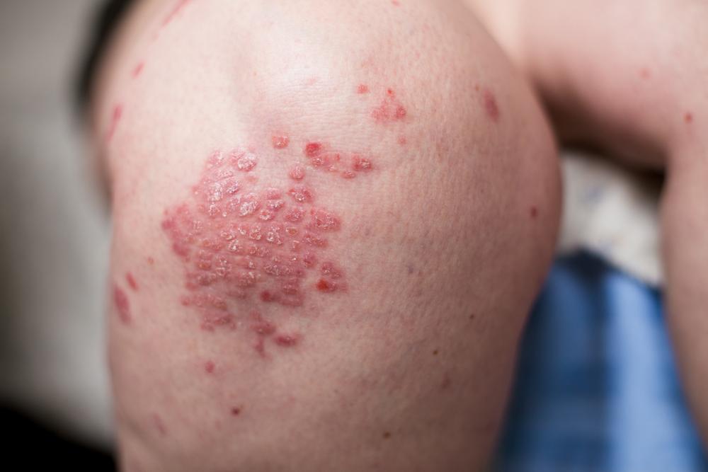 pikkelysömör okozza a tünetek kezelését és megelőzését