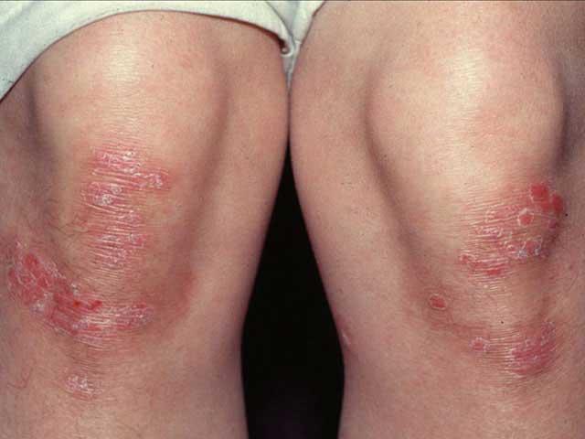 hogyan kell kezelni a hátsó vörös pikkelyes foltokat