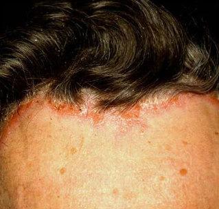 pikkelysömör a fejen népi gyógymódok