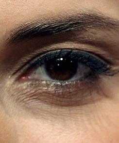 vörös folt és pikkelyes a szem alatt)