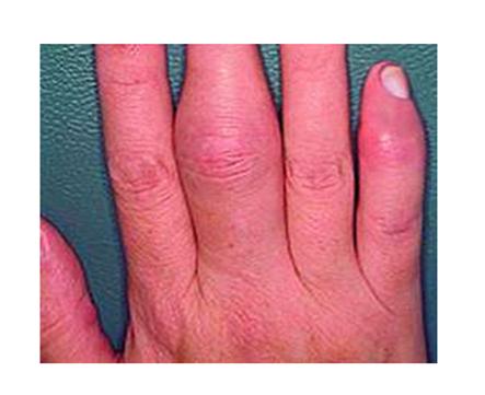 arthritis kezelése pikkelysömör