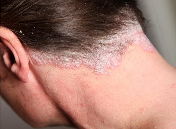 pikkelysömör az orr kezelés fotó)
