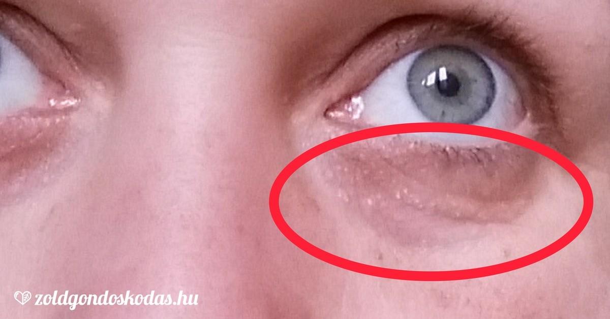 vörös pikkelyes foltok jelentek meg a szemhéjon)
