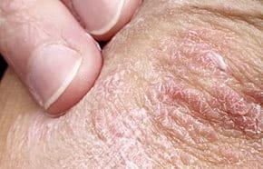 Pikkelysömör: 9 tipp, amire a bőrgyógyászok esküsznek - HáziPatika