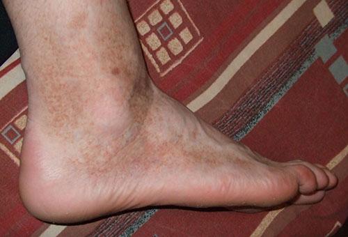 a lábakat vörös foltok borítják vörös foltok jelentek meg a fejbőrön és viszkető fotó