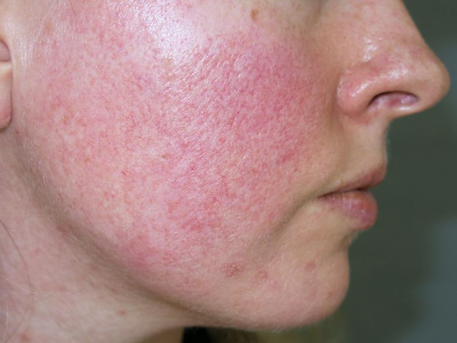 Így jelzi a bőr és a haj, ha gond van az emésztéssel: a tüneti kezelés mit sem ér