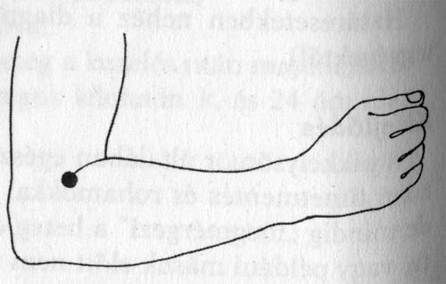 akupunktúrával pikkelysömör kezelésére)