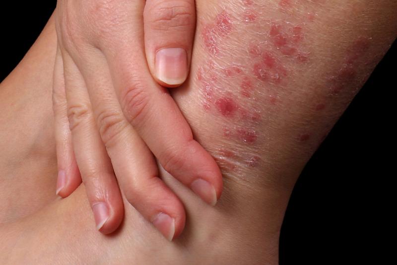 pikkelysömör okozza a tünetek kezelését és megelőzését)
