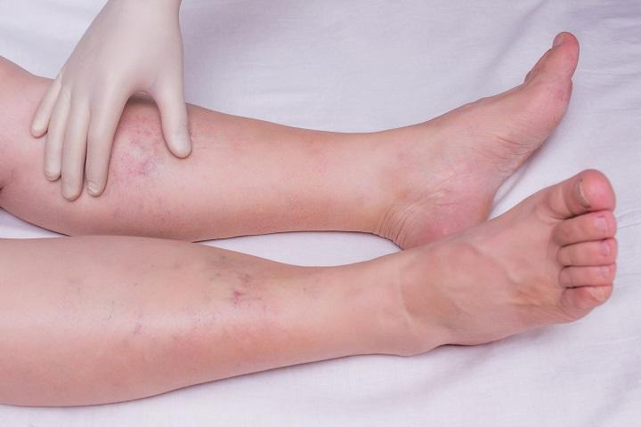 a lábak duzzanata vörös foltokkal fotó)
