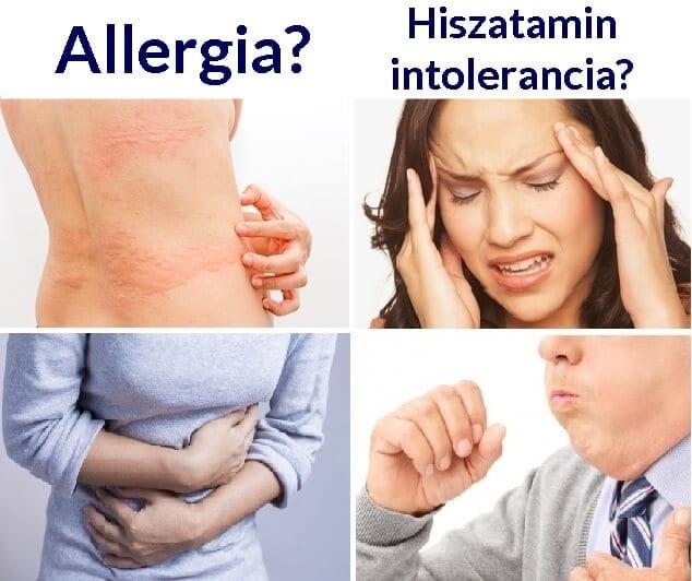 Psoriasis kezelése hidrogén-peroxiddal, pikkelysömör kezelésére szerinti eljárás Neumyvakina