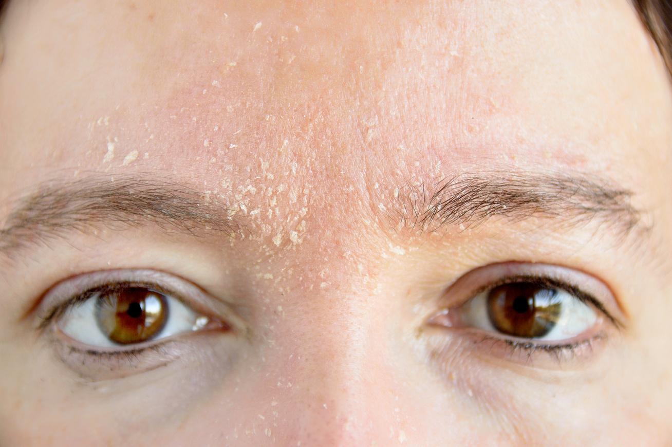 vörös folt jelent meg a homlokán, és lehámlik pikkelysömör vastagbél tisztító kezelés