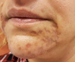 contractubex az arcon lévő vörös foltokhoz
