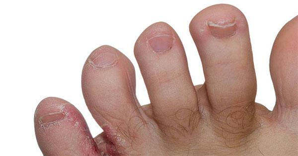 vörös hólyagos foltokkal borított kezek