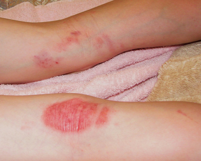 spa pikkelysömör kezelése