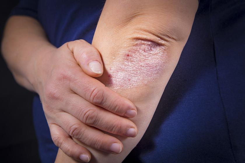 pikkelysömör viszketés kezelése vörös folt a testen és viszket