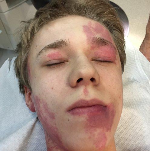 Piros foltok a baba arcán - Allergia November