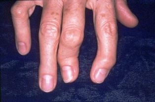 inharmonikus gygynvnyek pikkelysömörhöz ahol a nagymamák pikkelysömörét kezelik