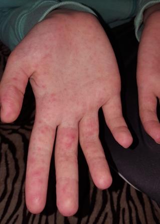 vörös foltok az ujjakon viszketnek