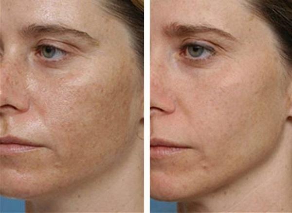 hogyan lehet megszabadulni az arcon lévő vörös foltoktól otthon