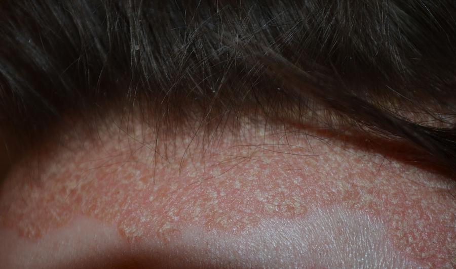 a folt vörös a bőrön és viszket hogyan lehet gyógyítani a pikkelysömör fején otthon