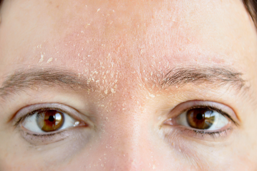 hogyan lehet gyorsan eltávolítani a szem alatti vörös foltokat radevit krém pikkelysömör