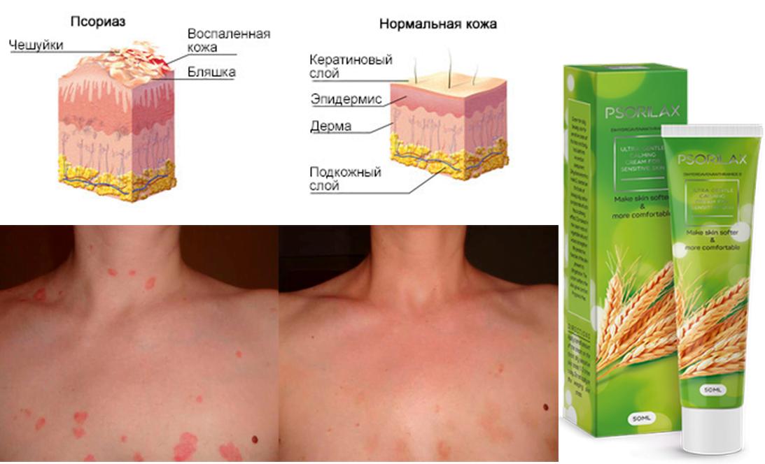 krioterápia pikkelysömör kezelésére)