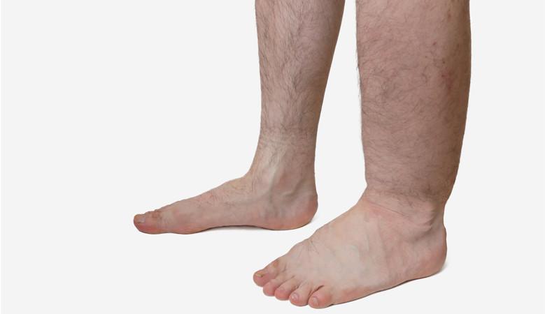 vörös foltok a lábujjak közelében)