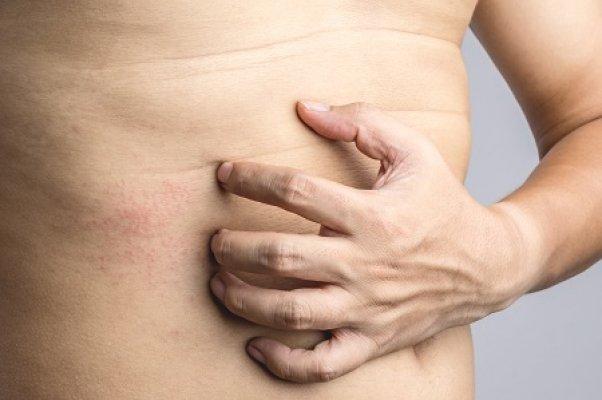 Mi a melanoma? - Anyajegyszűrő Központ