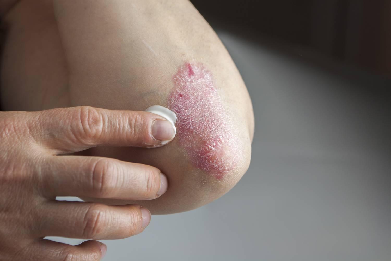 a könyök pikkelysömörét kezeljük psoriasis vulgaris progresszív stádiumú kezelés