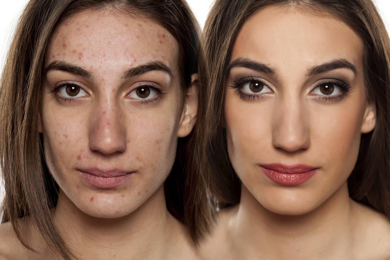 az arcbőr és a vörös foltok súlyos hámlása