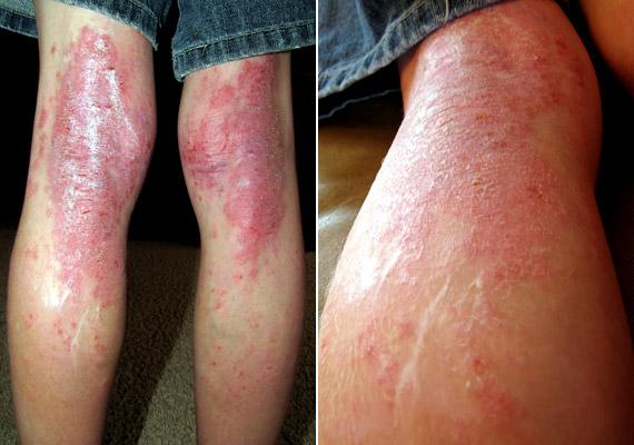 gyógyítani a láb pikkelysömörét
