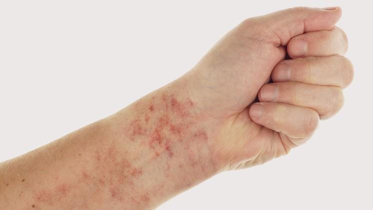 Vörös foltok a térdeken: okok és kezelés - Chicken pox November