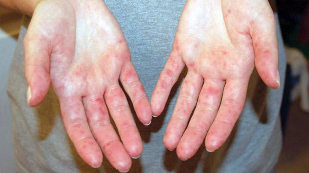 miért viszketnek a kezén vörös foltok)