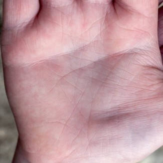 a kezek piros foltok fotó)