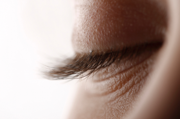 a szemhéjak alatt vörös foltok húzódnak le kiütés formájában vörös foltok jelentek meg az arcon