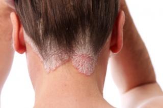 pikkelysömör a bőrön kezelés népi gyógymódokkal
