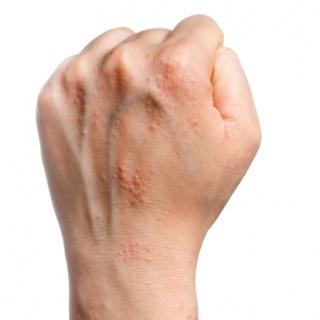 meleg tavasz pikkelysömör kezelése hogyan és mit kell kezelni a kezen pikkelysömör