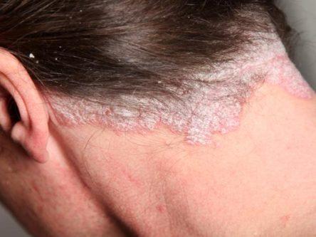 vörös foltok az arcon 50 évesen vizek kztti kezelése pikkelysömörhöz