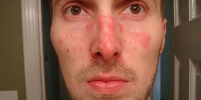 vörös pikkelyes folt jelent meg az arcán)