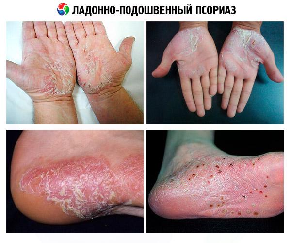 Orvosi vér tisztítás psoriasis