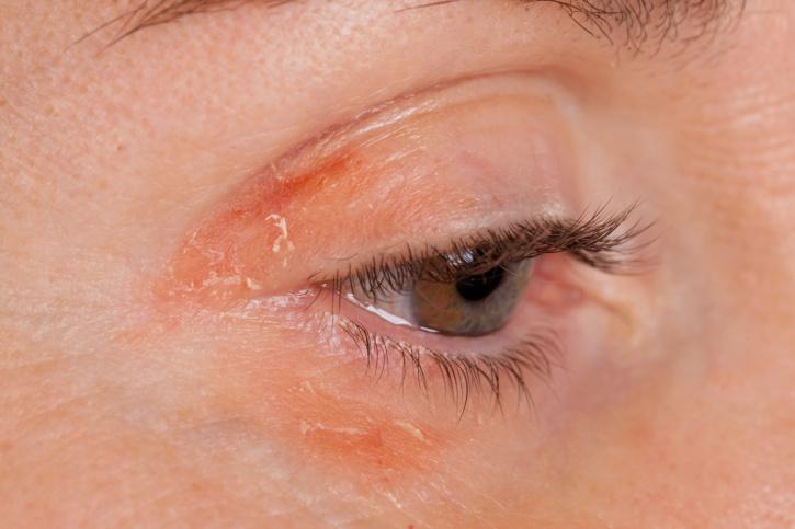 vörös pikkelyes foltok a szem körüli arcon