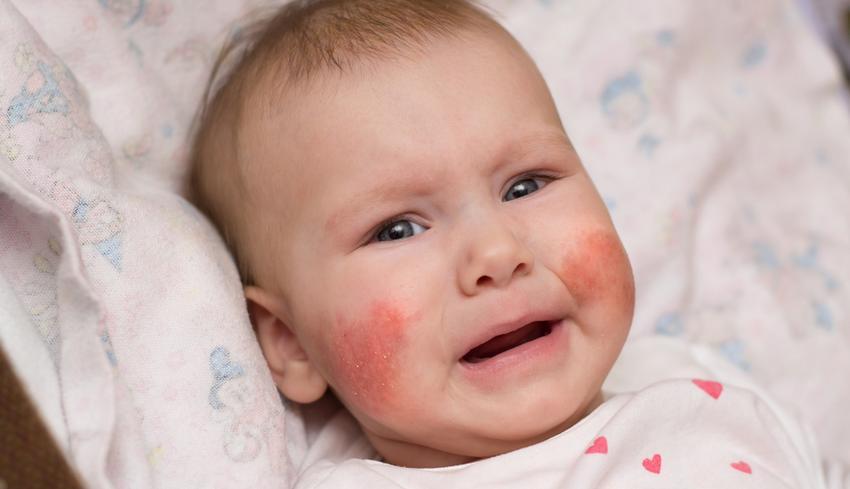 az arcon a bőr és a vörös foltok erősen hámlanak)