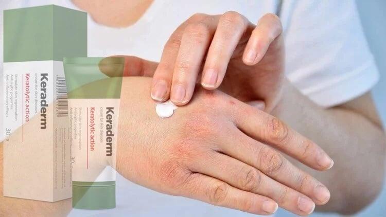 a psoriasis krémek áttekintése