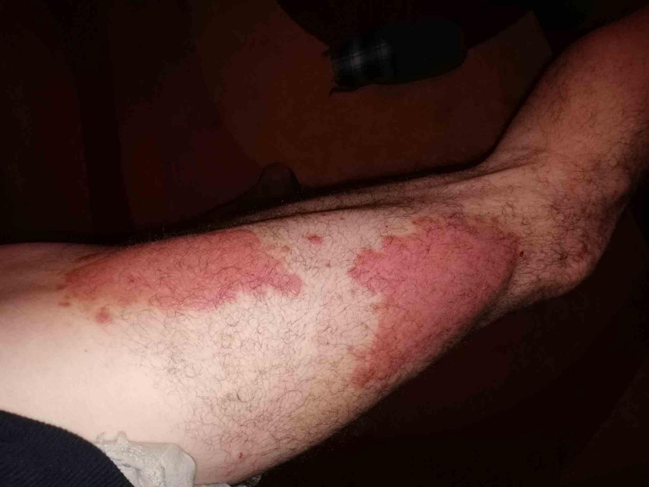 Előrelépés a pikkelysömör és az akne gyógyításában - Dívány