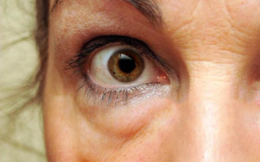vörös szem jelenik meg a szemhéjon és viszket)