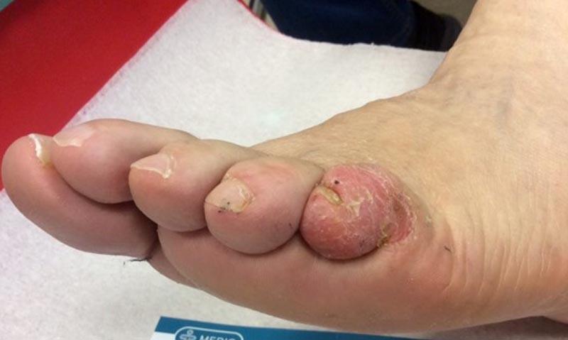 egy cukorbetegnek piros foltok vannak a lábán)