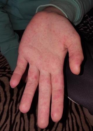 vörös folt a kezén hogyan kell kezelni