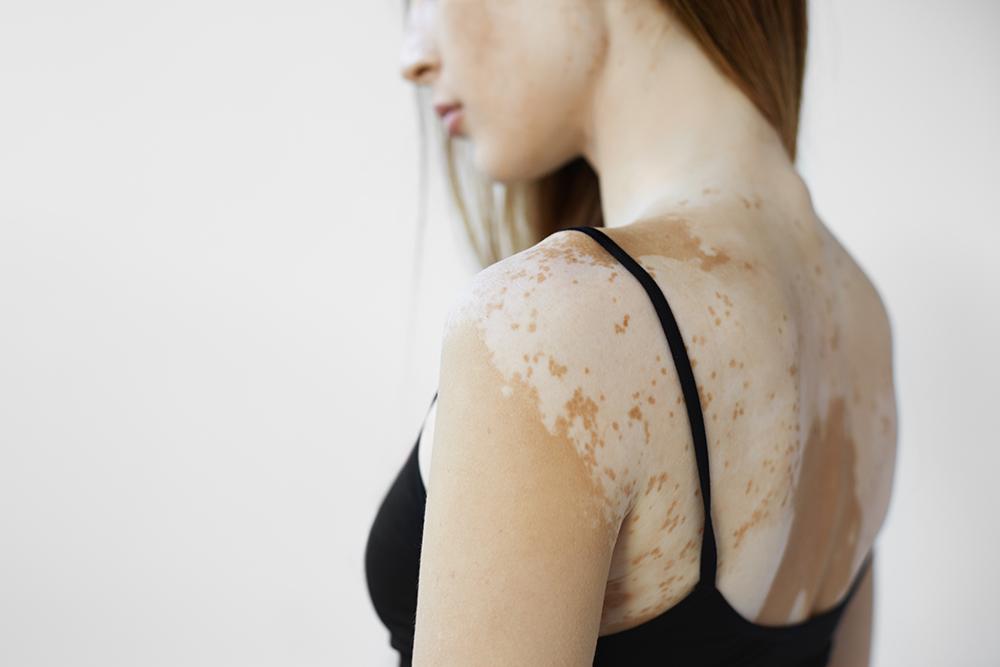 Vitiligo tünetei és kezelése